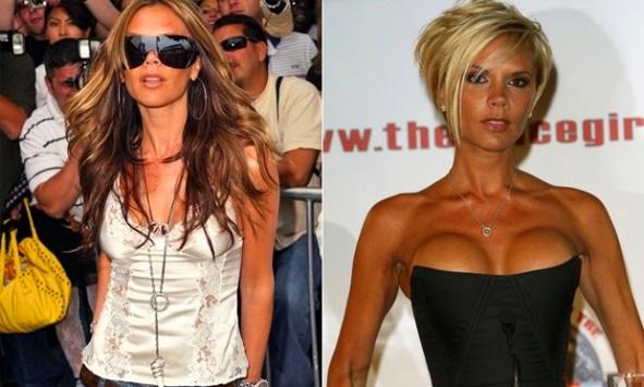 Implantes de peito Kim kardashian